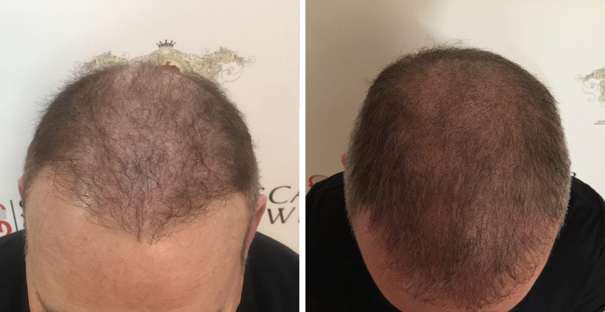 la micropigmentation capillaire pour une transplantation de cheveux scalpswiss. Black Bedroom Furniture Sets. Home Design Ideas