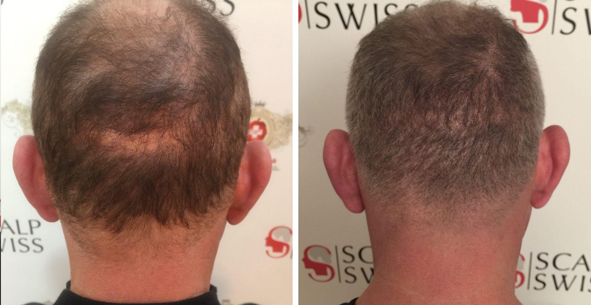 La Micropigmentation Capillaire Pour Une Transplantation De Cheveux