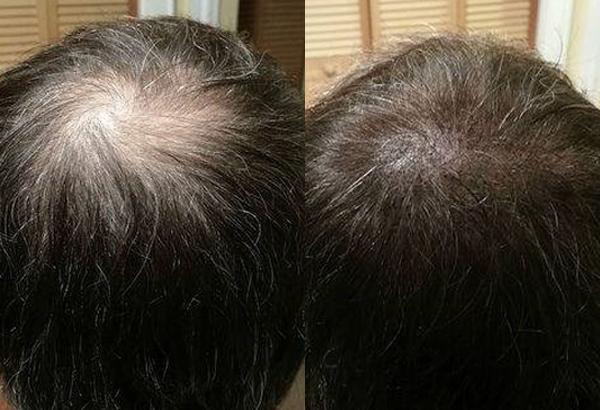 Hair transplantation price in bangalore dating 4