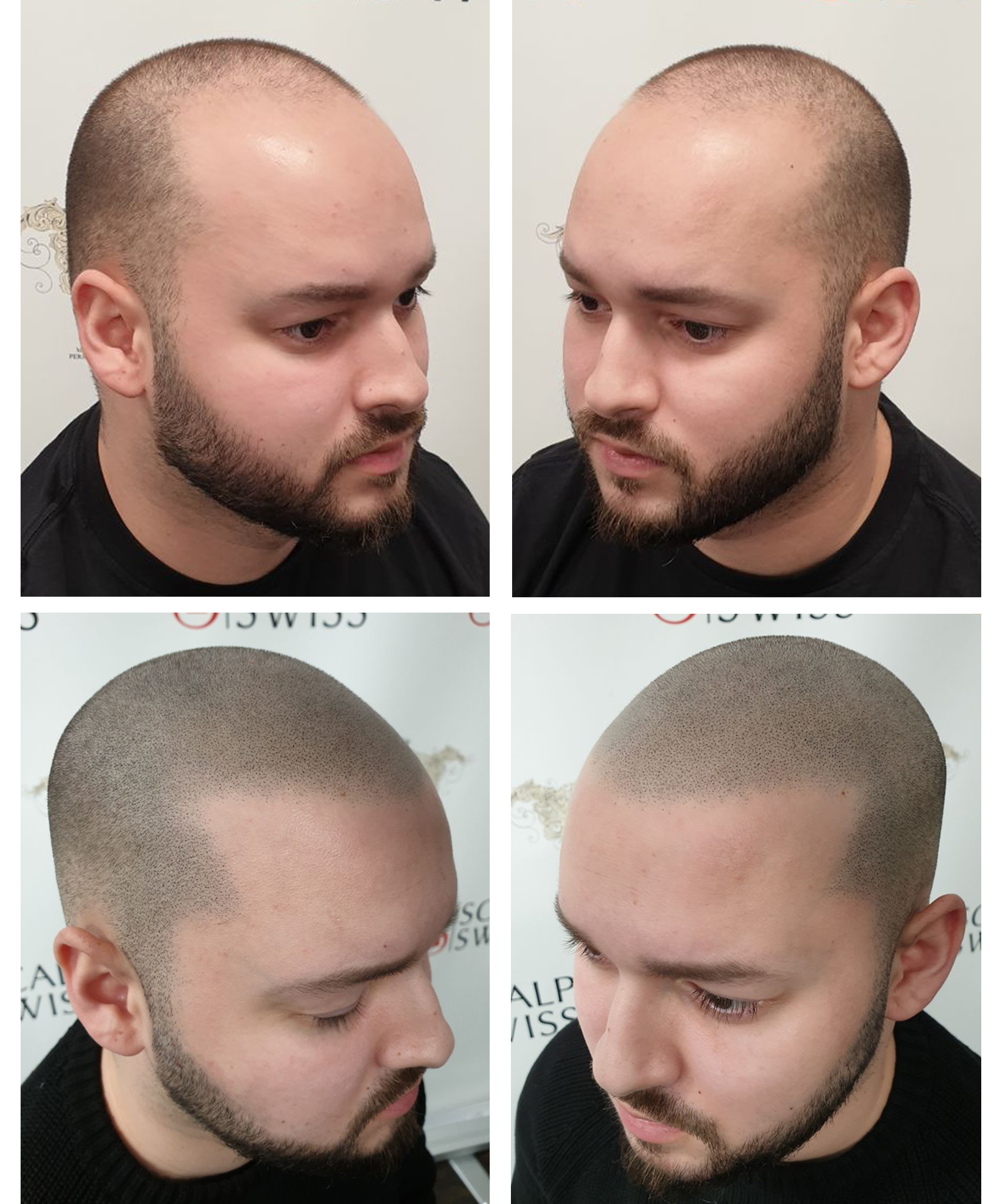 what-is-scalp-micropigmentation